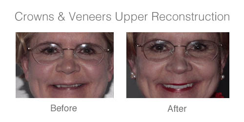 crowns-veneers