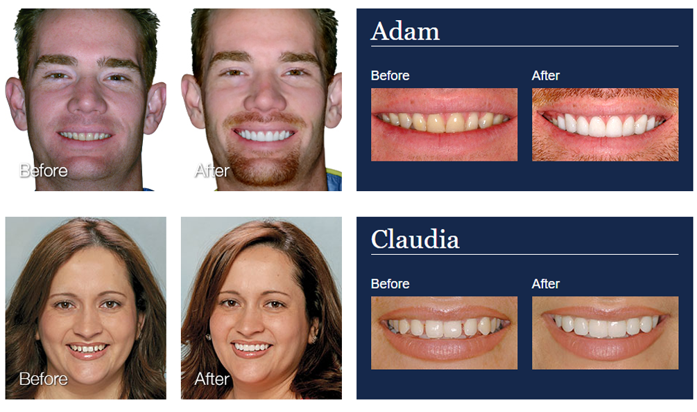 Atlanta Lumineers Dental Veneer Patient Before and After Photo
