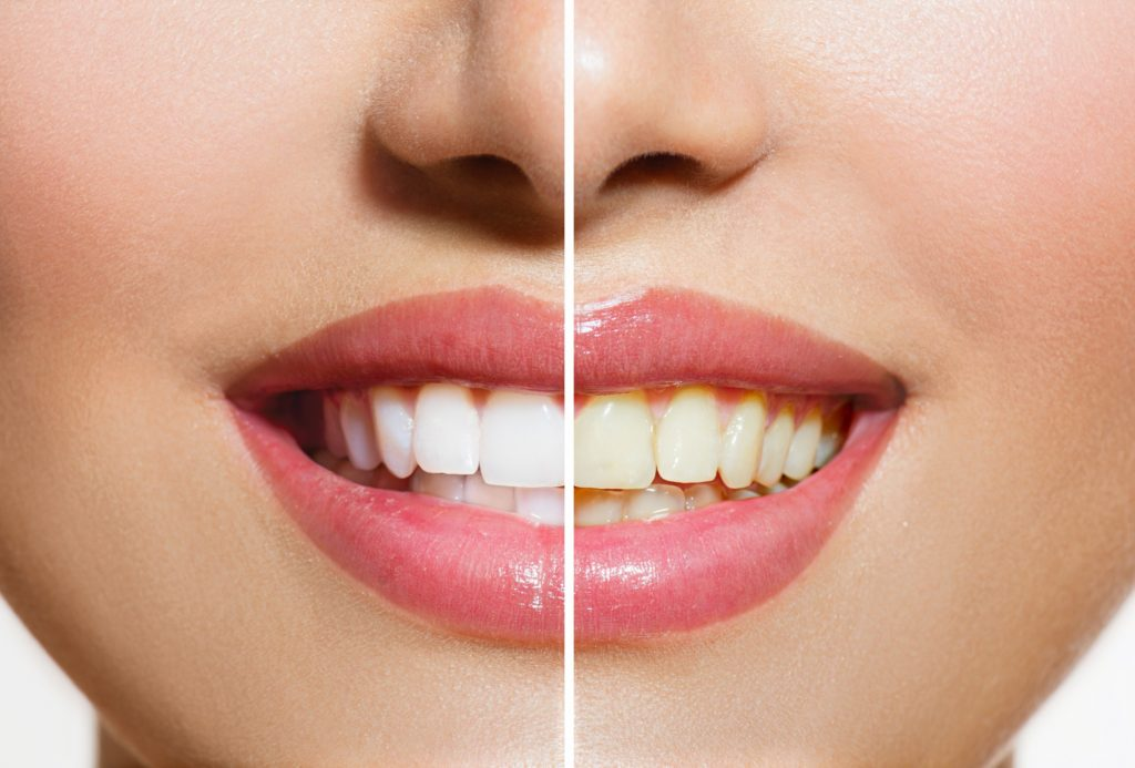 teeth whitening before and after | Goldstein Dental Center