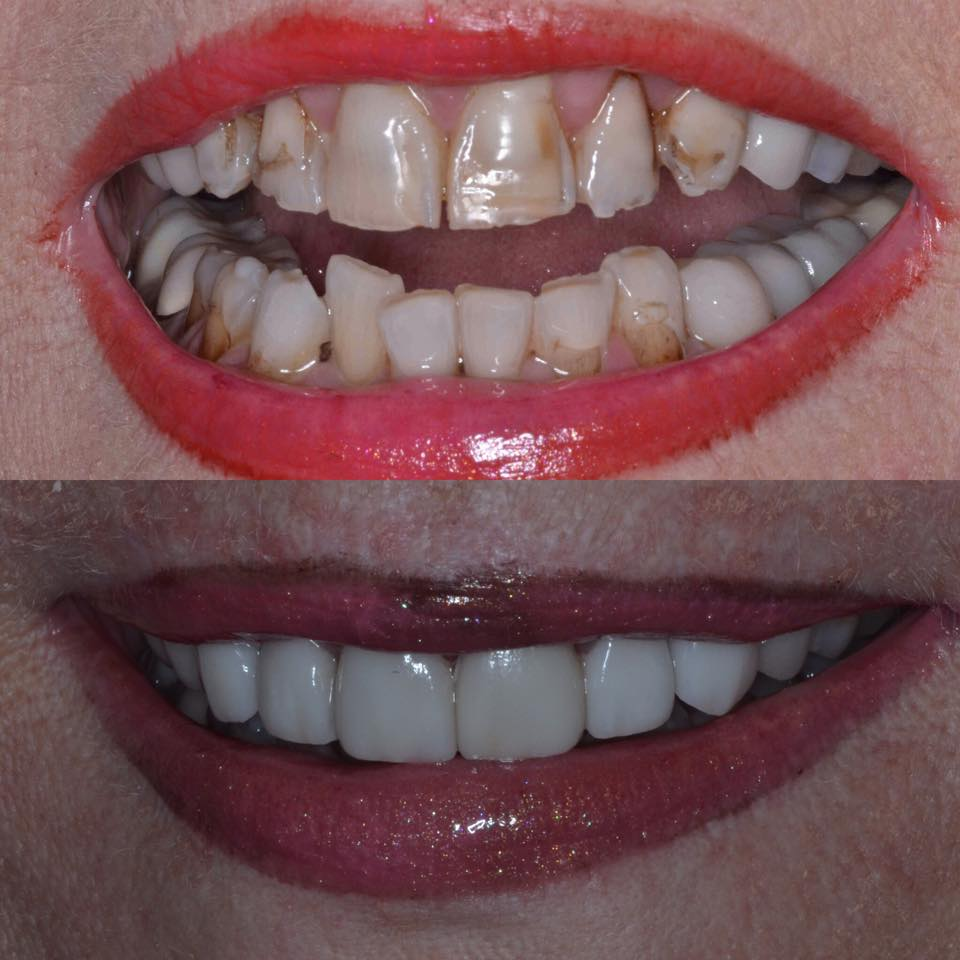 Before and after dental veneers | Goldstein Dental Center Atlanta