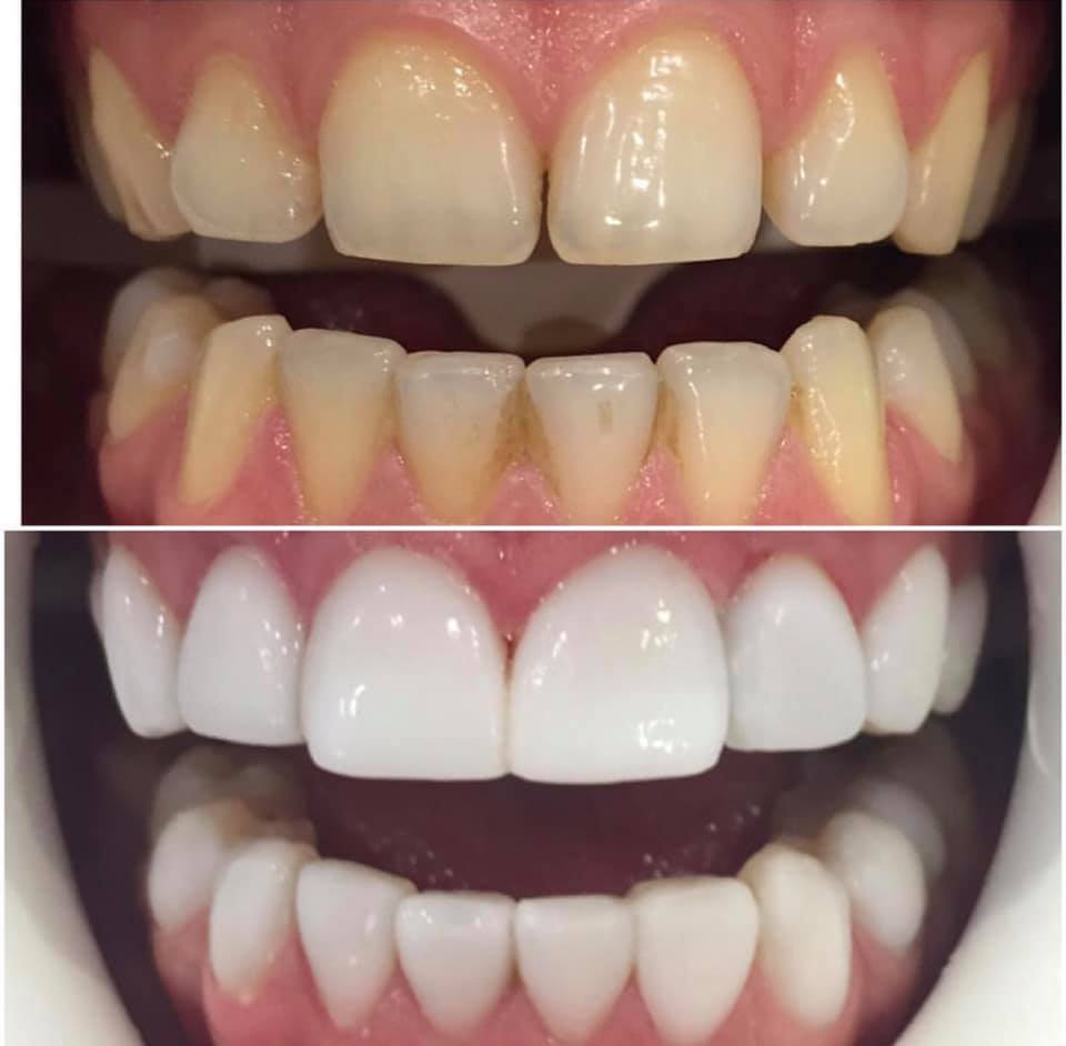 teeth whitening before and after - Atlanta, GA | Dr Goldstein