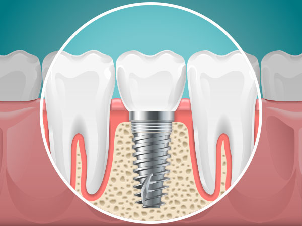 Atlanta Dental Implant | Goldstein Dental Center