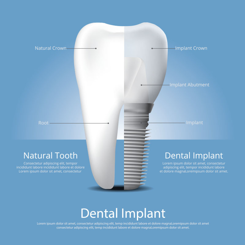 Interior view of a dental implant | Goldstein Dental Center