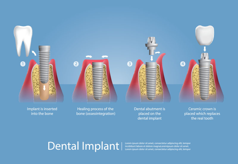 How a dental implant works - Goldstein Dental Center