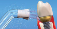 water pik on a dental implant