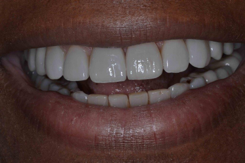 close-up of patient's smile after treatment