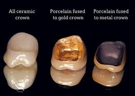 Tooth Crown Options at Goldstein Dental Center
