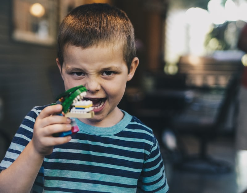 young boy smiling and playing with prosthetic teeth