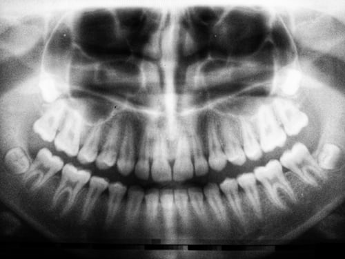 x-ray of a patient's teeth